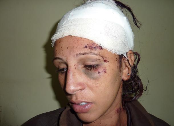 EXCLUSIVO! Mulher é golpeada na cabeça apos tentar roubar 10 mil reais de idosos