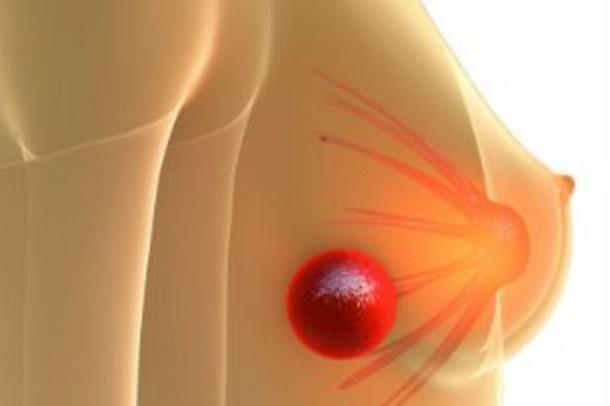 Prefeitura de Rosário promove Mutirão da Mamografia nesta segunda e terça-feira